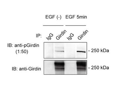 #28067 Anti-Human Girdin (S1416 Phosphorylated) Rabbit IgG Affinity Purify