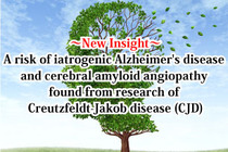 New Insight: A risk of iatrogenic Alzheimer's disease and cerebral amyloid angiopathy found from research of Creutzfeldt-Jakob disease (CJD)