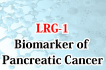 LRG-1 - Possibility for becoming a biomarker of pancreatic cancer
