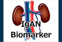 IHC using Gd-IgA1 specific antibody (KM 55) / A new biomarker for IgA nephropathy (IgAN) and IgA vasculitis with nephritis (IgA-VN) – new article-