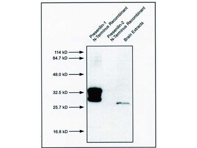 #10151 Anti-Human Presenilin-1 (17C2) Mouse IgG MoAb