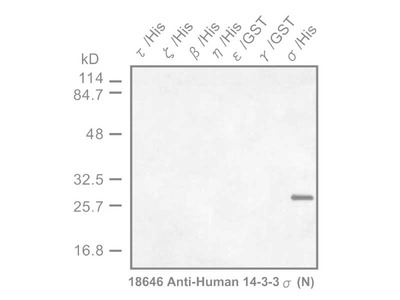 #18646 Anti-Human 14-3-3 σ Protein (N) Rabbit IgG Affinity Purify