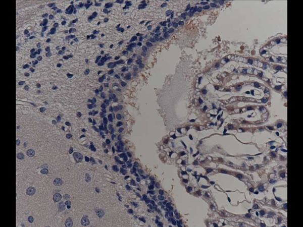 Rat choroid plexus cells (cillia, ependyma cells), Around ventricle