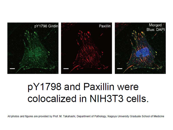 pY1798 and Paxillin were colocalized in NIH3T3 cells Photo is provided by Prof. M. Takahashi, Department of Pathology, Nagoya University Graduate School of Medicine