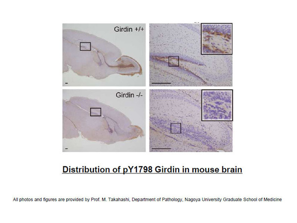 Distribution of pY1798 Girdin in mouse brain Photo is provided by Prof. M. Takahashi, Department of Pathology, Nagoya University Graduate School of Medicine