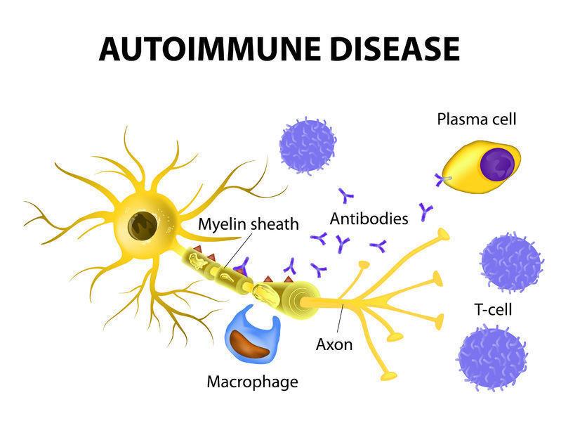 疾患 自己 免疫